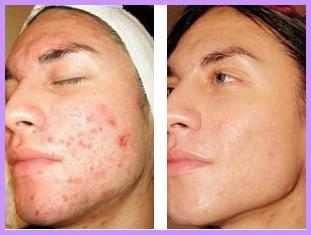 Derma Roller or Micro Needling Before-After: Acne Scarring