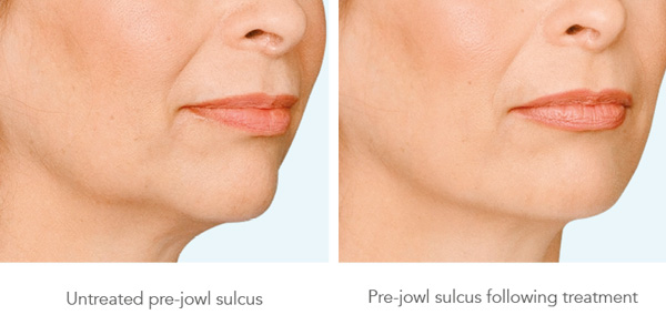 Is Jowl lift the solution to loose jowls, sagging cheeks