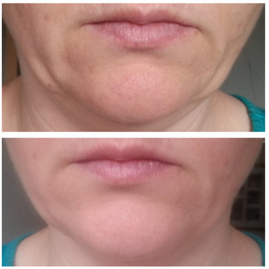 caci jowl lift before and after reviews