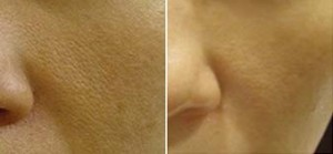 microneedling-skin-uneven-tone-open-pores