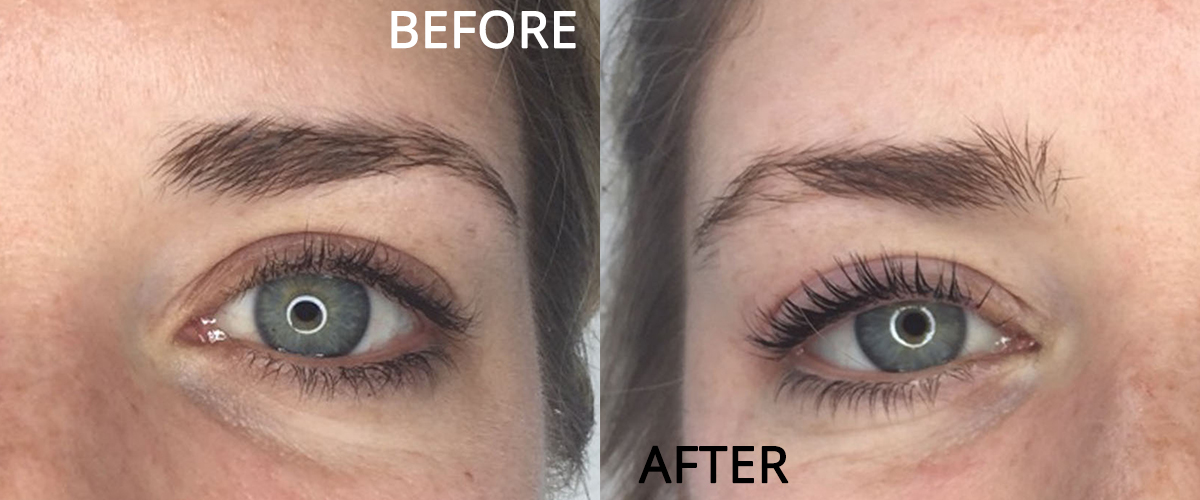 9043a9d9e23 Transform Your Lashes with LVL Lash Lift - Shumailas
